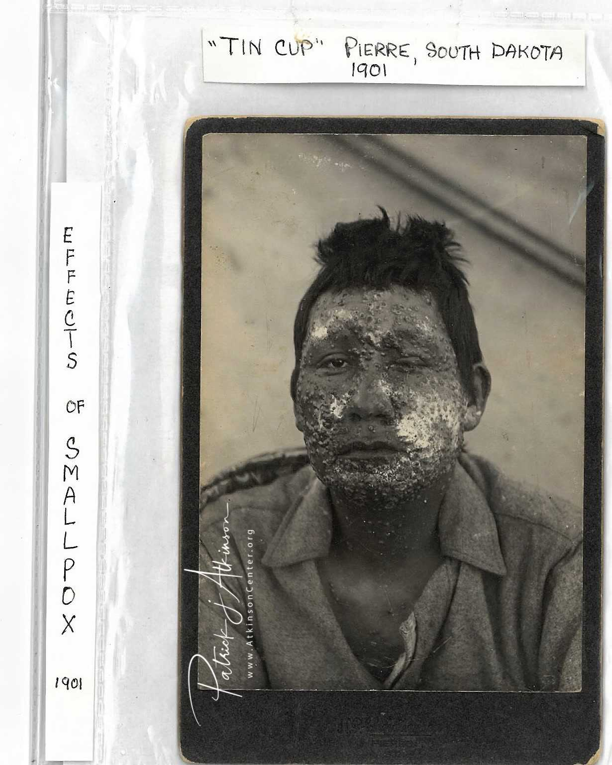 Sioux Indian with smallpox 1901 - photo - The Atkinson Center