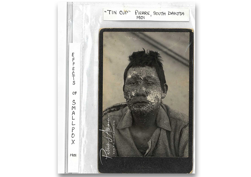 Sioux Indian - smallpox epidemic - 1901 - TinCup
