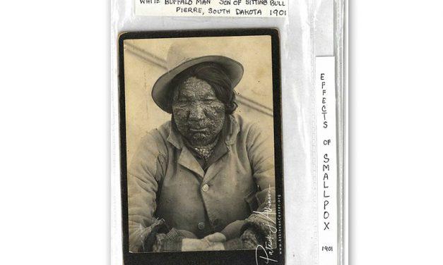 Sioux Photo Smallpox – White Buffalo Man
