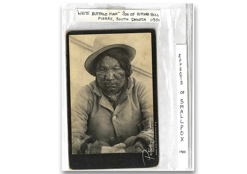 Sioux Indian with - smallpox epidemic -1901 - White Buffalo Man